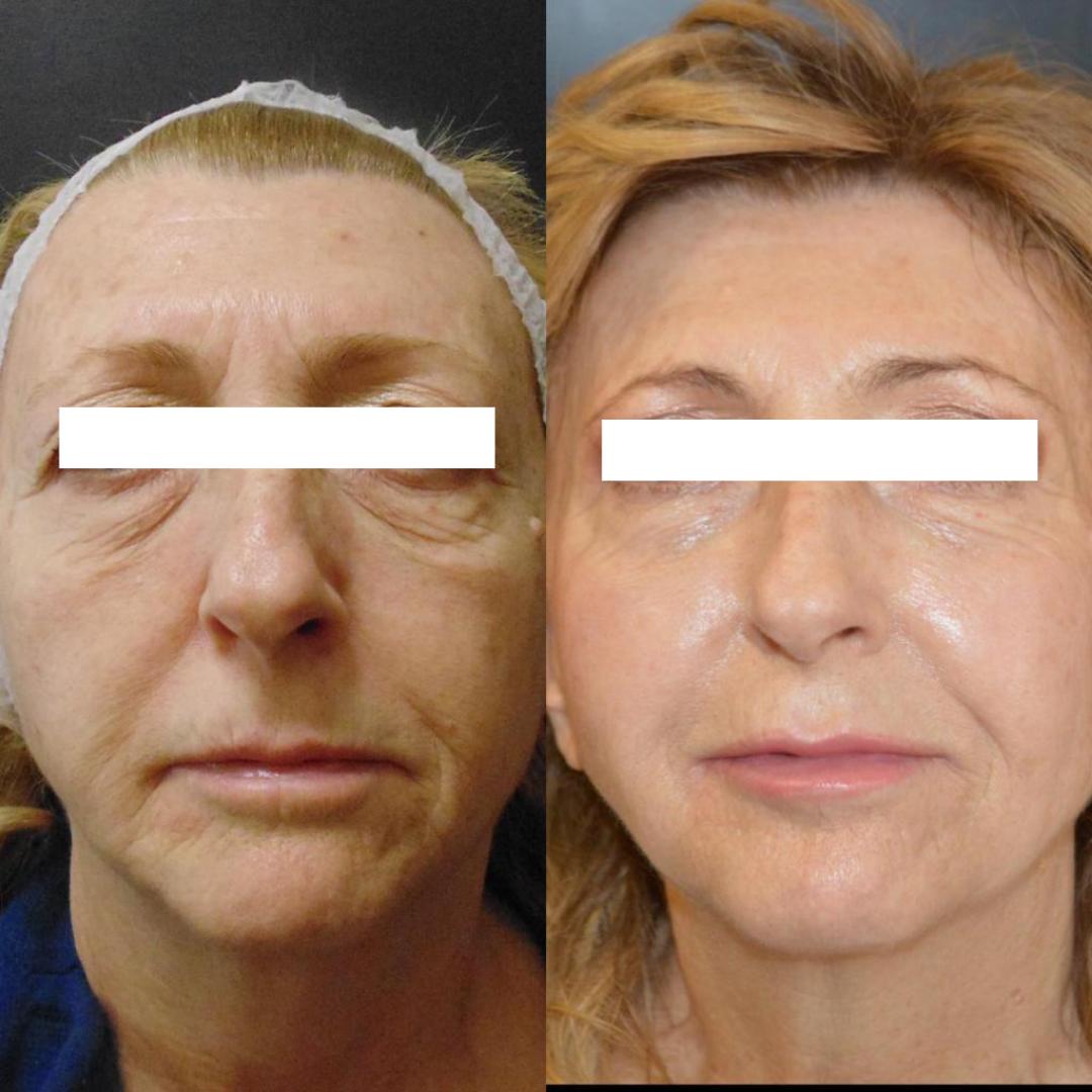 Blefaroplastica superiore e inferiore associata a trattamenti di medicina estetica (laser e botulino)