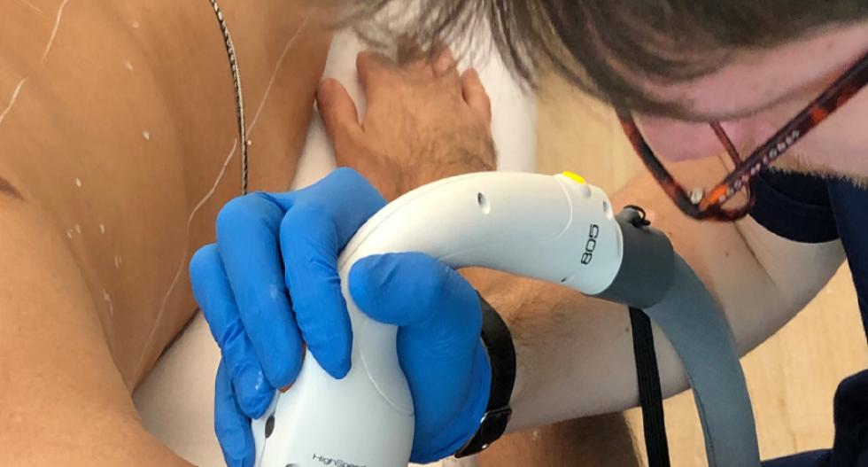 Epilazione medica con laser