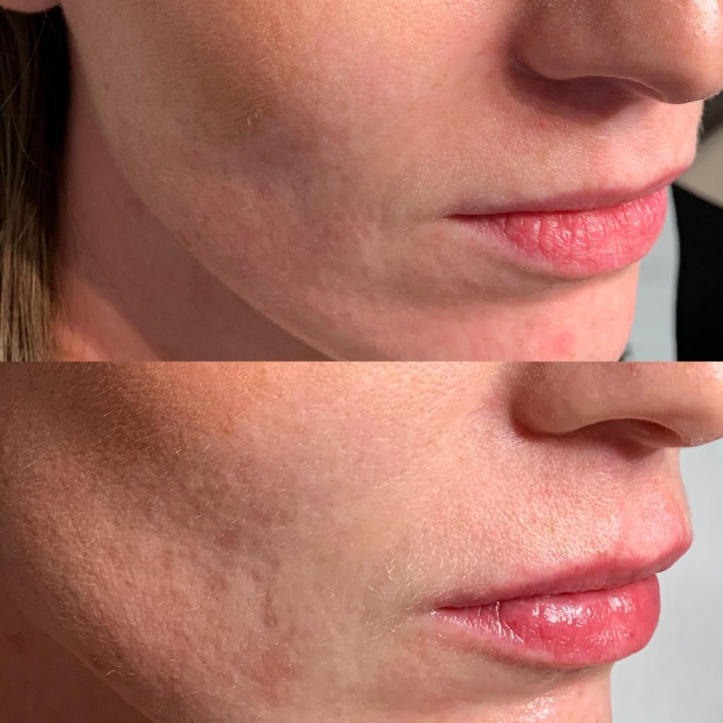 Ridefinizione labbra femminili