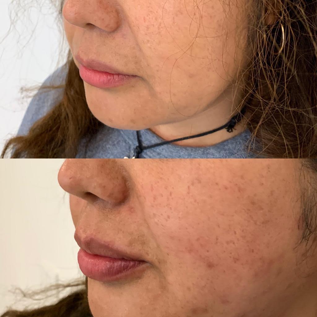 Ridefinizione labbra femminili 3